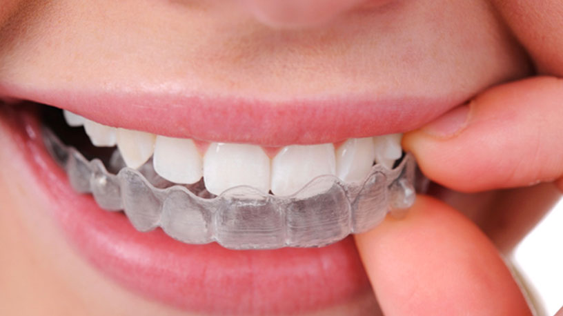 How Much Do Braces Cost for Teens?